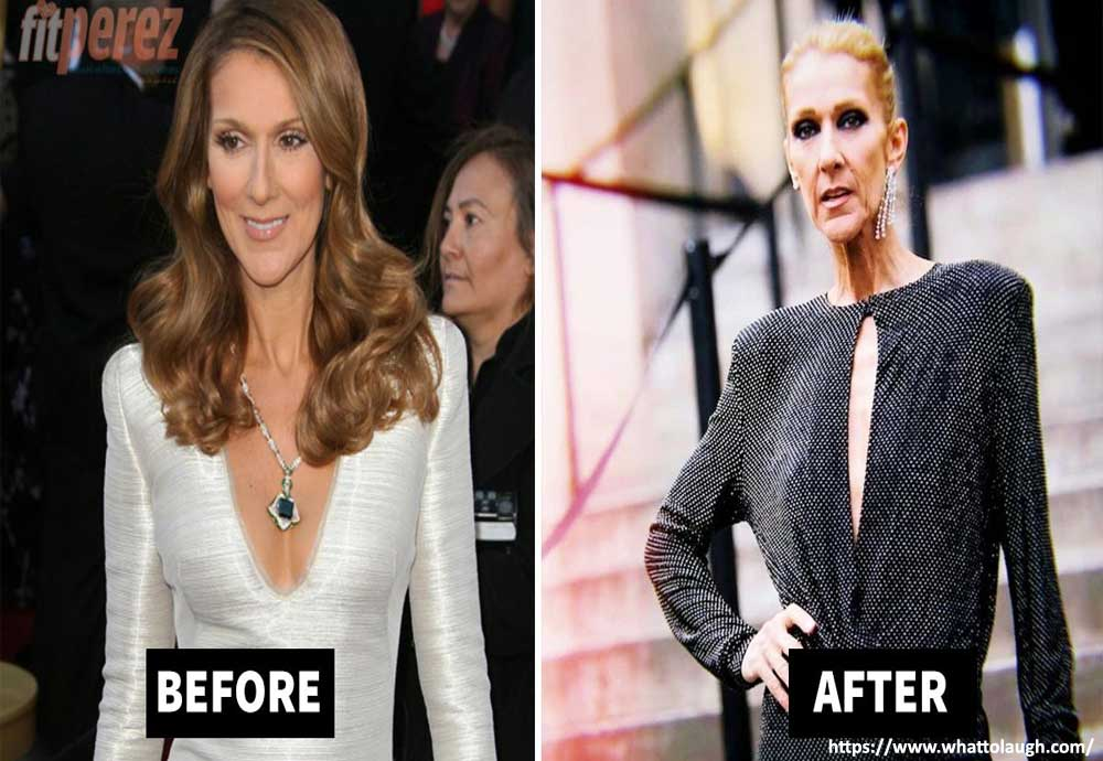 Reasons Behind Celine Dion Weight Loss
