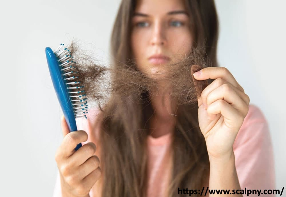 pcos-hair-loss-using-different-methods